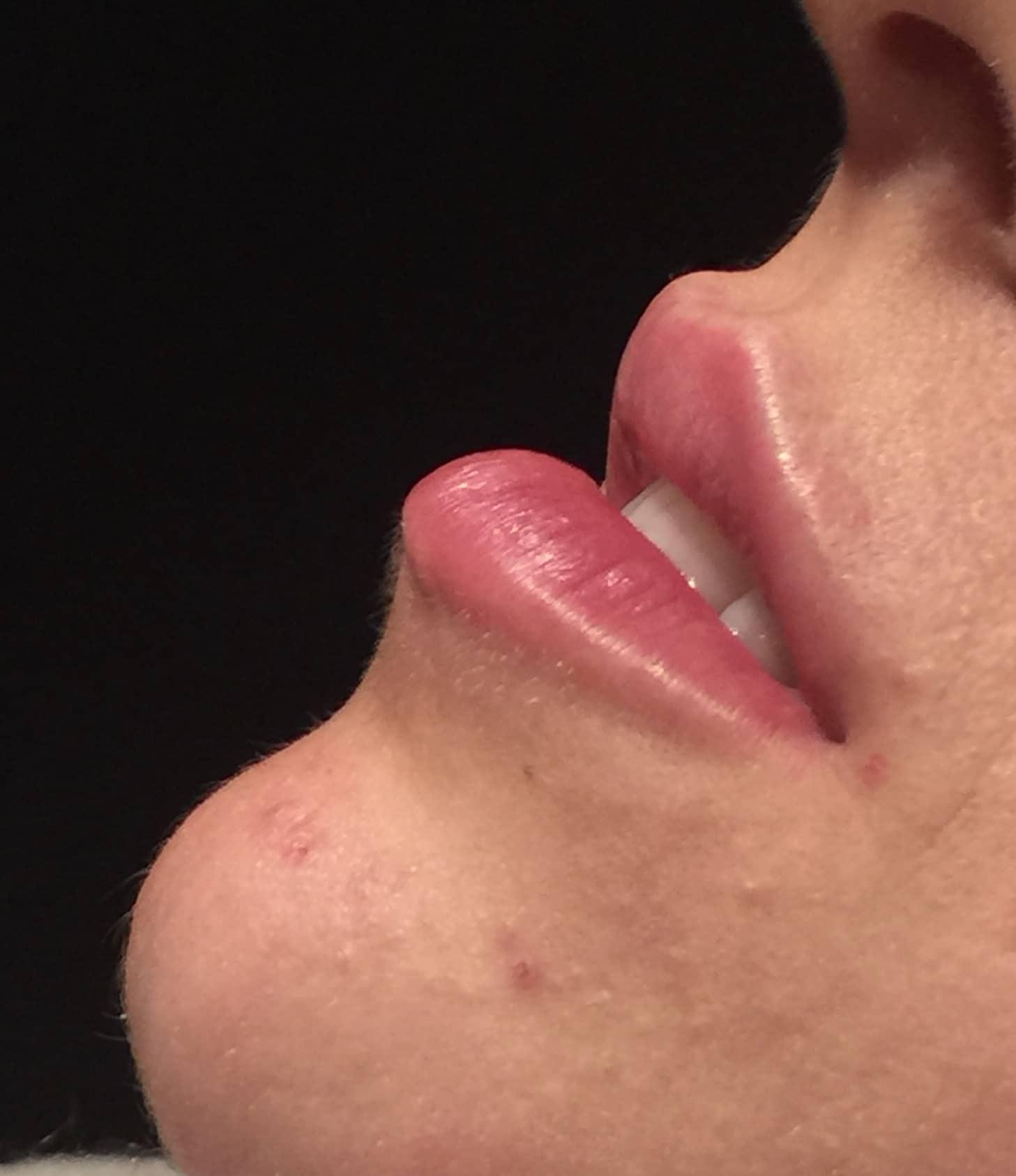 44 Derngate | Facial Aesthetics Gallery